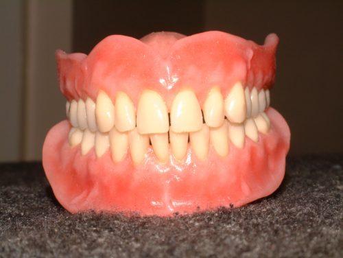 dentures-stock-image