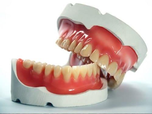denture-halves