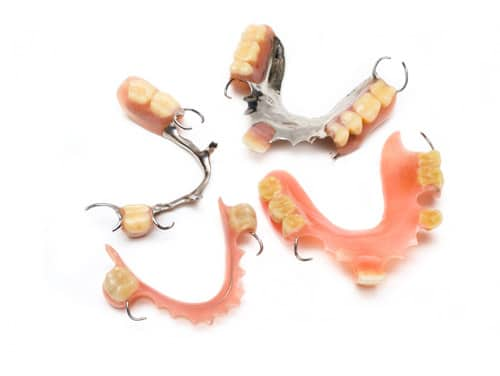 denture-types-compared