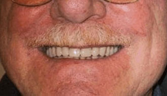 elderly-male-happy-after-dentures