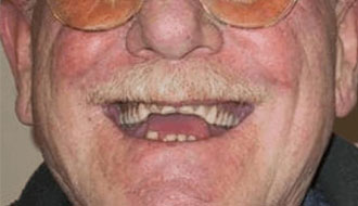 before-dentures-elderly-man