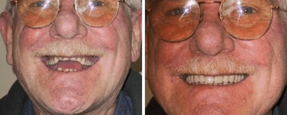 male-older-smile-before-after