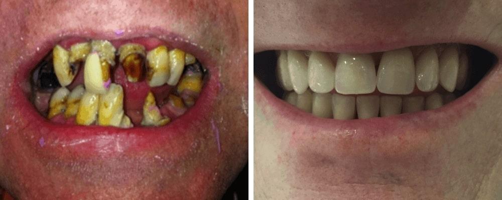 rotten-vs-good-teeth