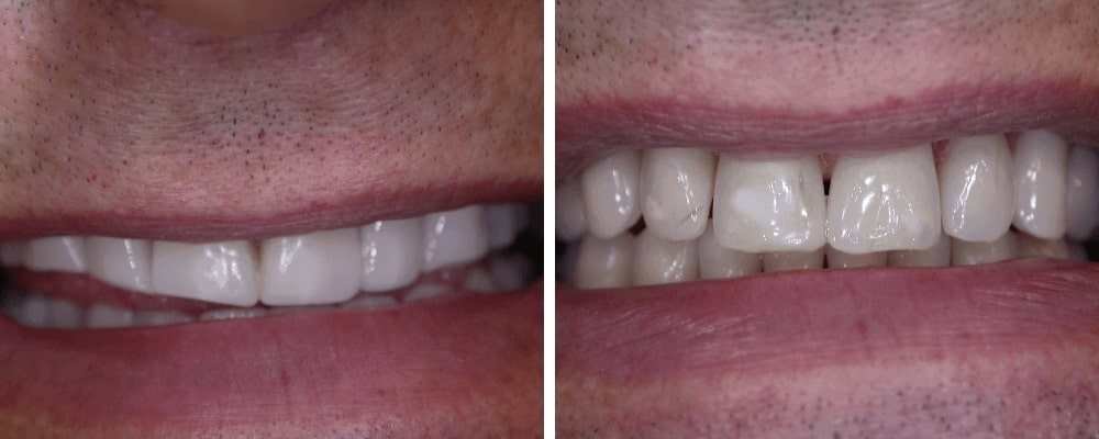 mouth-male-before-after-teeth