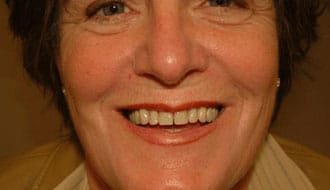 after-dentures-happy-woman