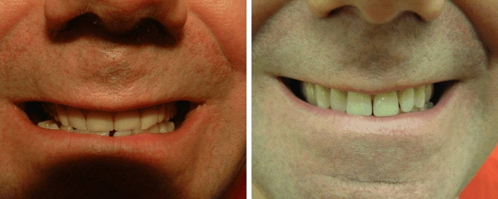 success-male-patient-before-after