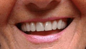 happy-after-dentures-image