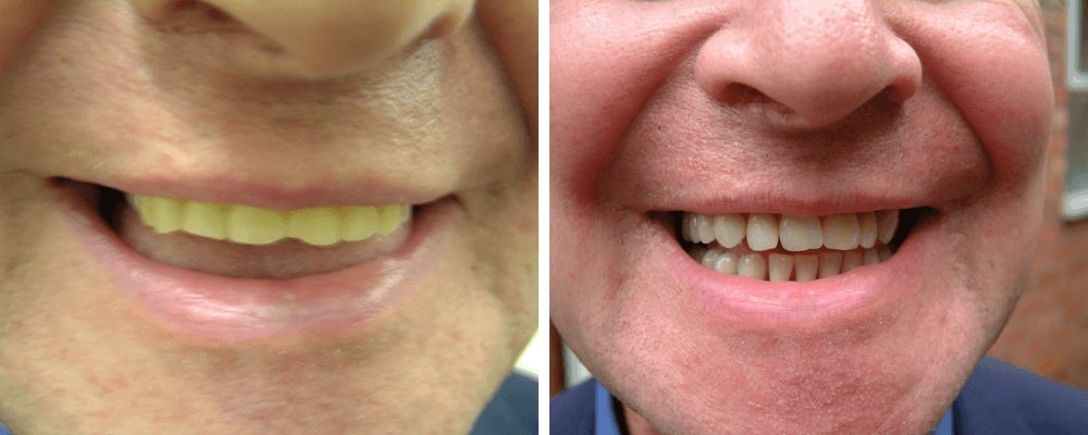 male-comparison-new-teeth-before-after