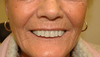 before-dentures-patient-female