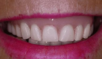 teeth-before-treatment