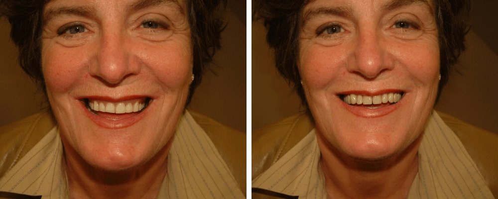 happy-female-patient-before-after