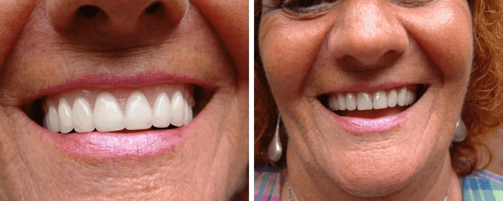 happy-lady-before-after-dentures