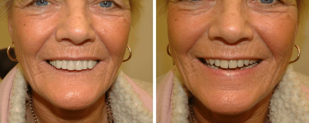 happy-before-after-female