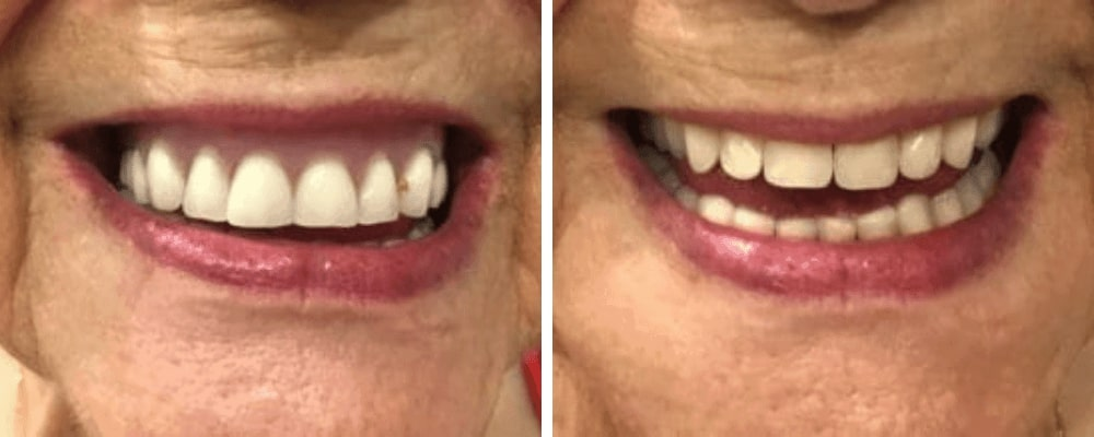 female-smile-before-after