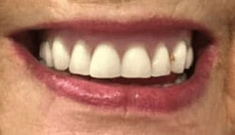 female-teeth-happy-post-dentures