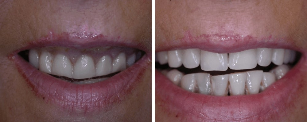 teeth-before-after-images
