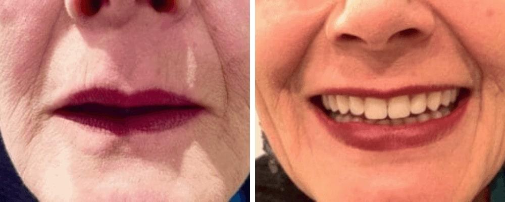 female-teeth-good-vs-bad
