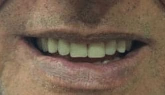 top-teeth-after-dentures-happy