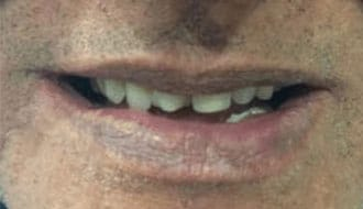 horrible-teeth-before-dentures-male