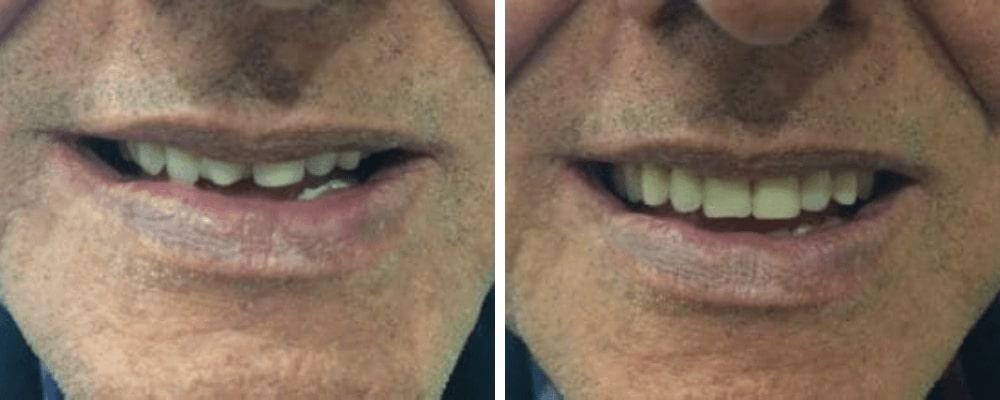 male-happy-vs-bad-teeth