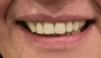 male-better-smile-dentures