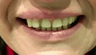 before-dentures-female-teeth-bad