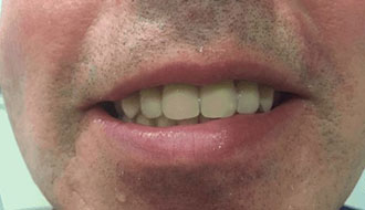 male-patient-after-new-teeth