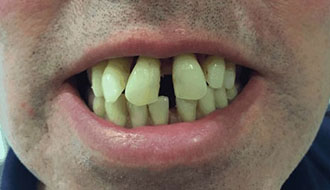 old-bad-teeth-male-before-dentures