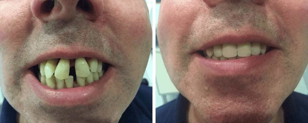 male-teeth-before-after