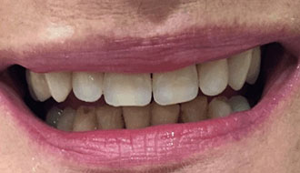 after-dentures-top-teeth-female