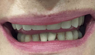bad-teeth-female-before-denture