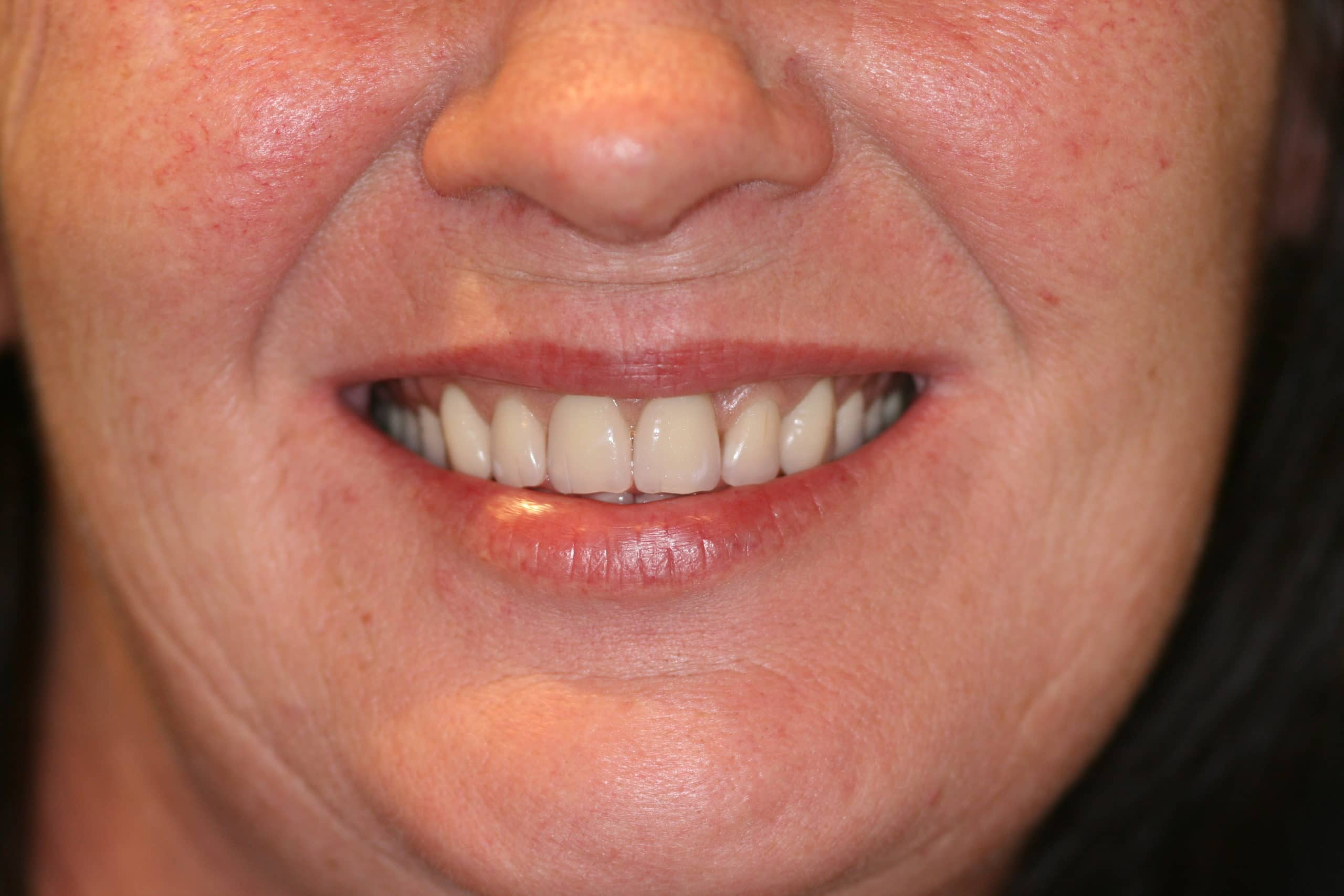 happy-woman-new-denture-teeth