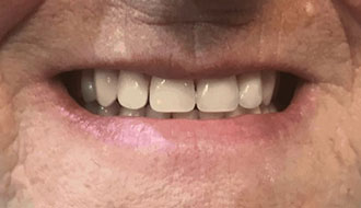after-dentures-happy-female-mouth