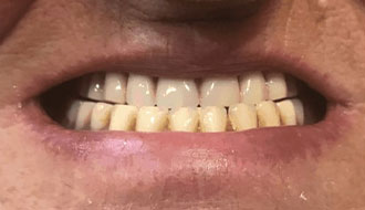 top-teeth-dentures-happy-patient