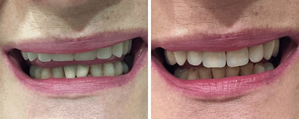 before-after-female-dentures
