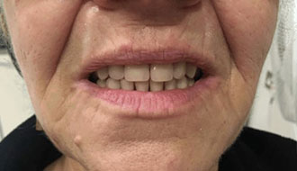good-teeth-after-dentures