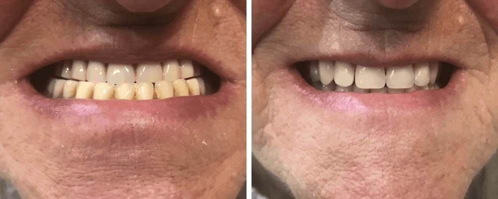 before-after-male-dentures