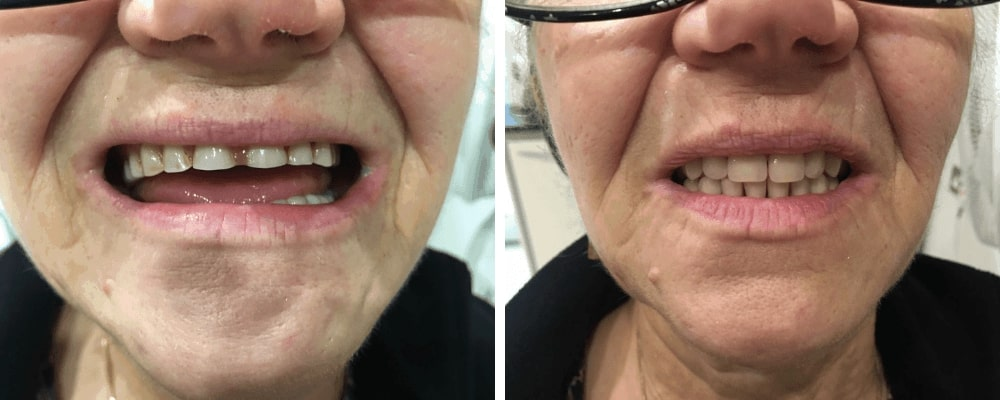old-female-before-after-teeth-new