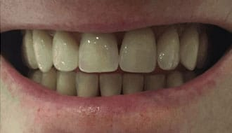 new-teeth-good-dentures
