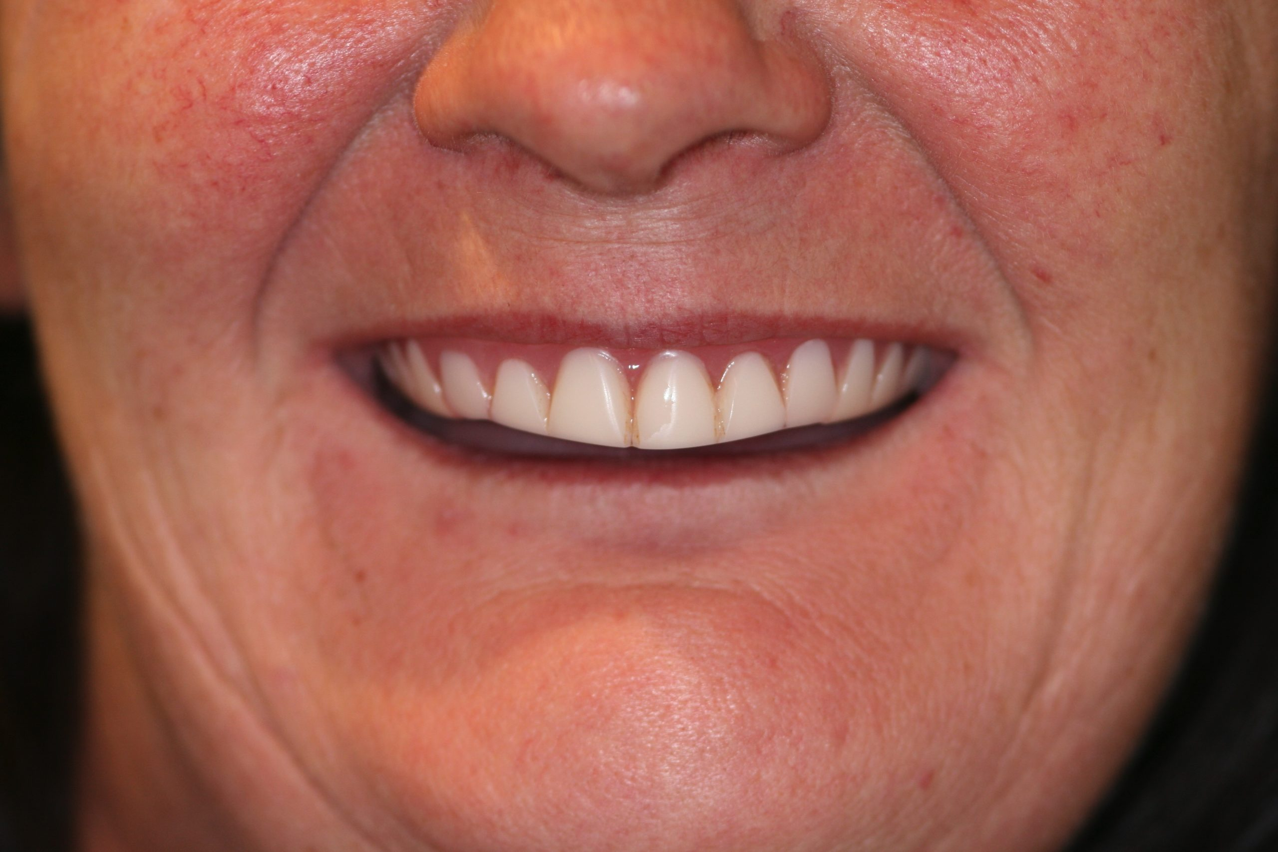 happy-lady-new-denture-teeth