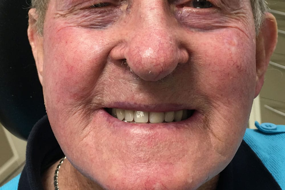 after-new-teeth-denture-male