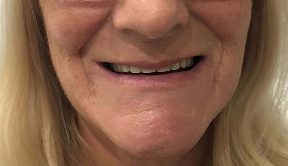 before-dentures-bad-teeth-woman