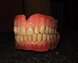 ultra-grip-denture-model