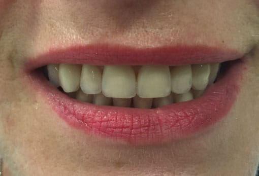 female-mouth-happy-teeth