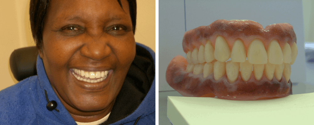 female-dentures-images