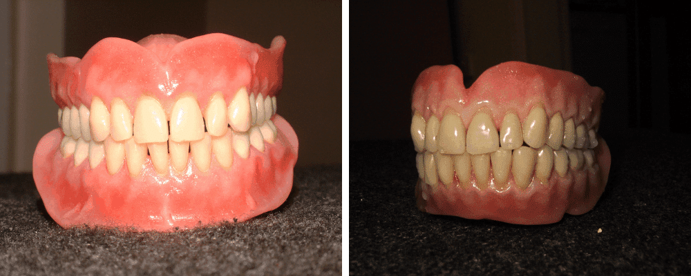 gum-teeth-comparison-image