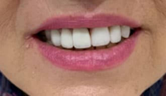 happy-woman-patient-teeth-after
