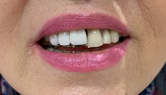 woman-teeth-before-image