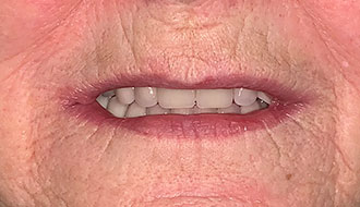 new-teeth-woman-after-image