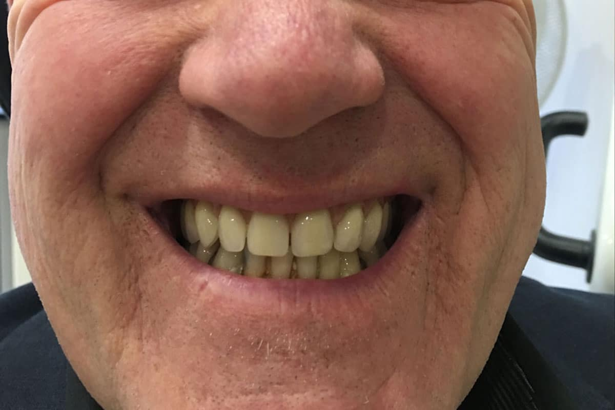 male-patient-teeth-after
